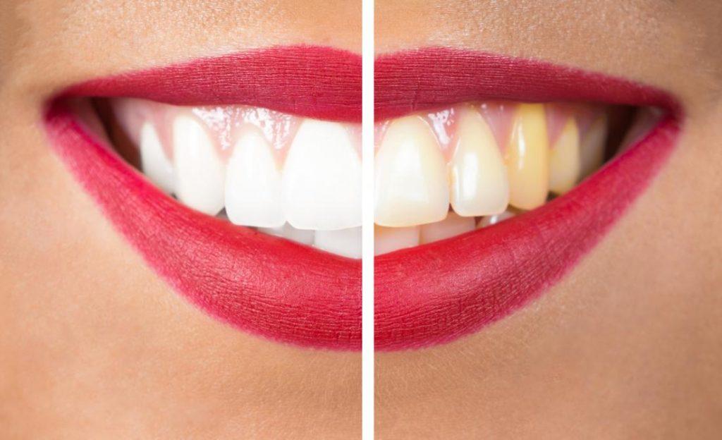 【美白牙膏推薦 PTT 話題品】牙齒黃垢刷不掉?牙膏美白這 3 款超有感!